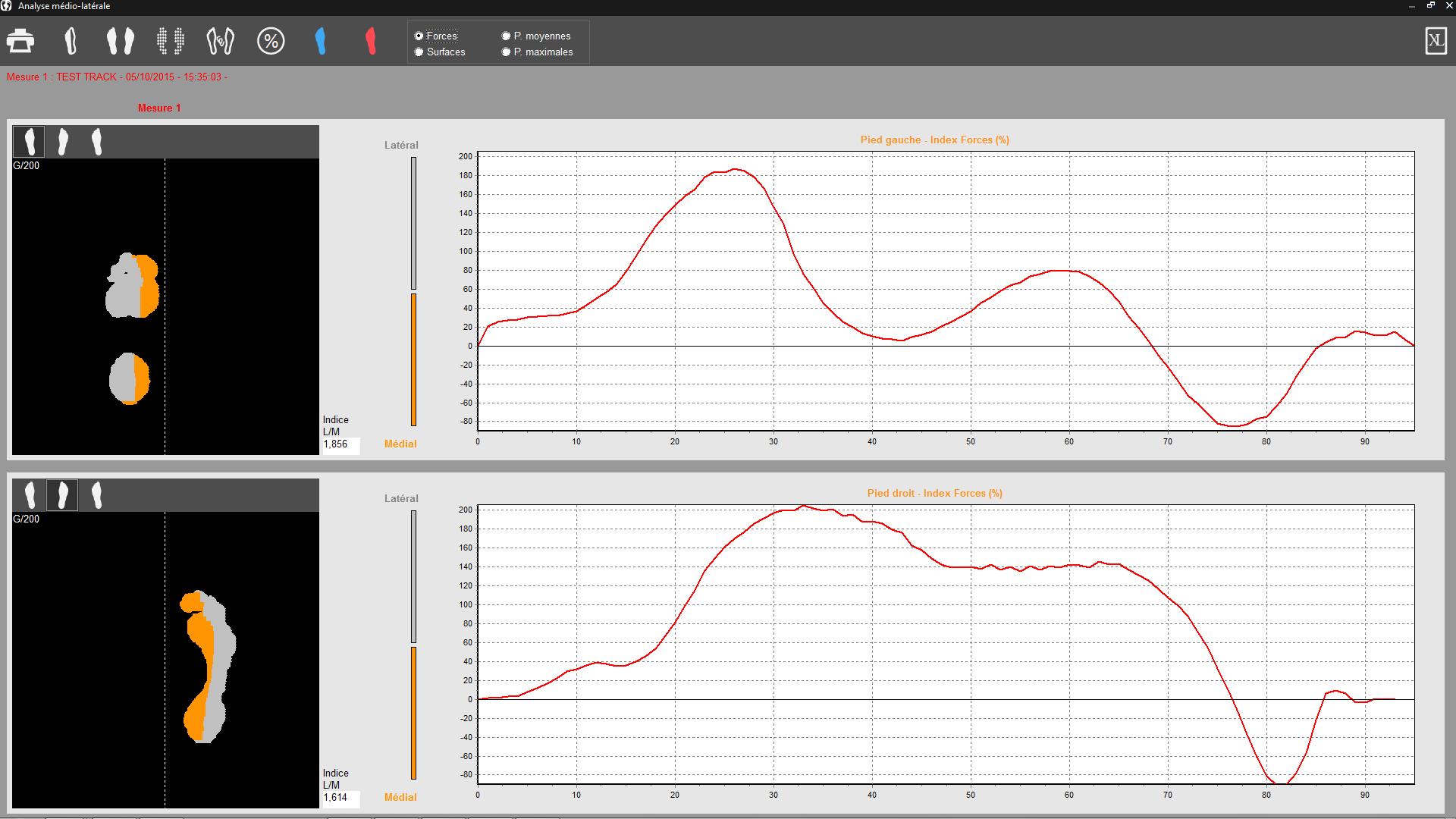 Analyse médio-latérale Win-Track