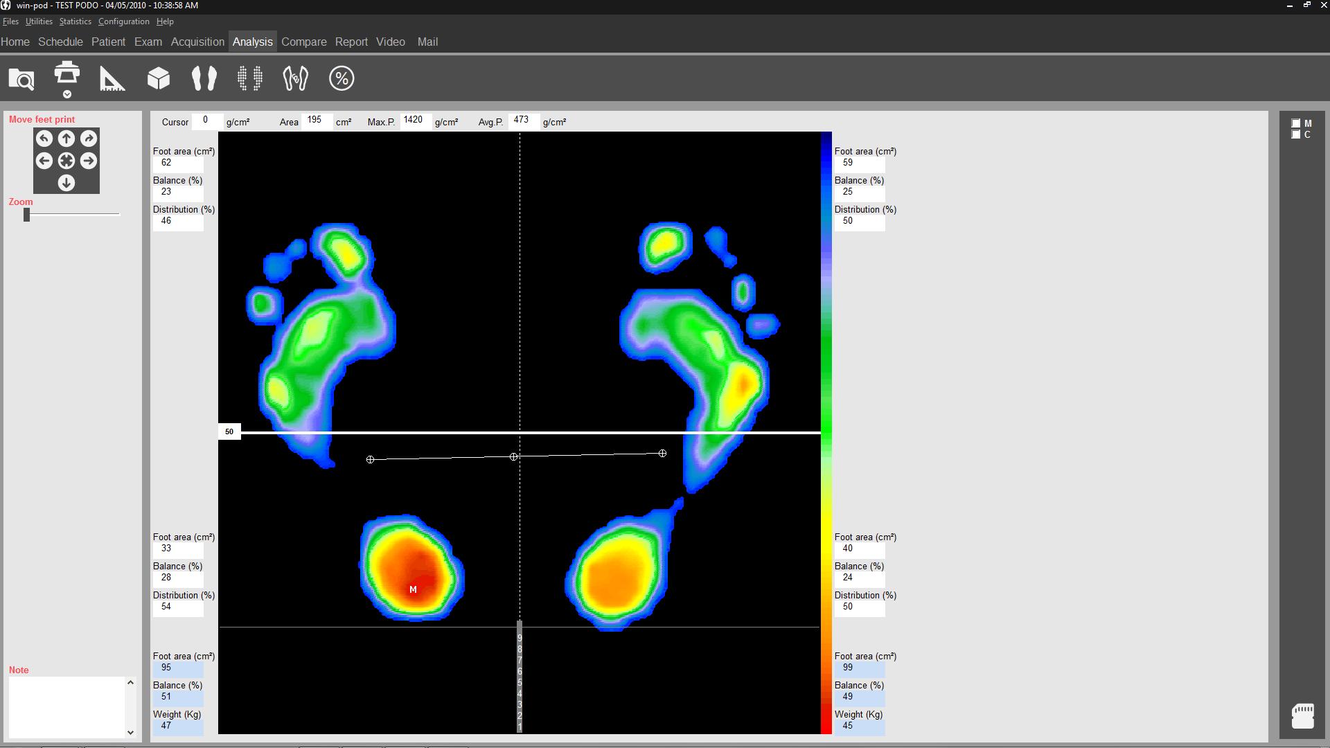 Statics analysis Winpod