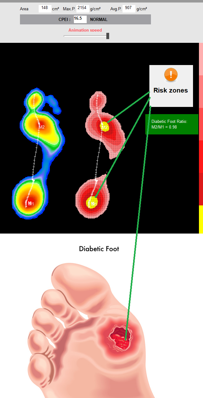 linkedin-diabete